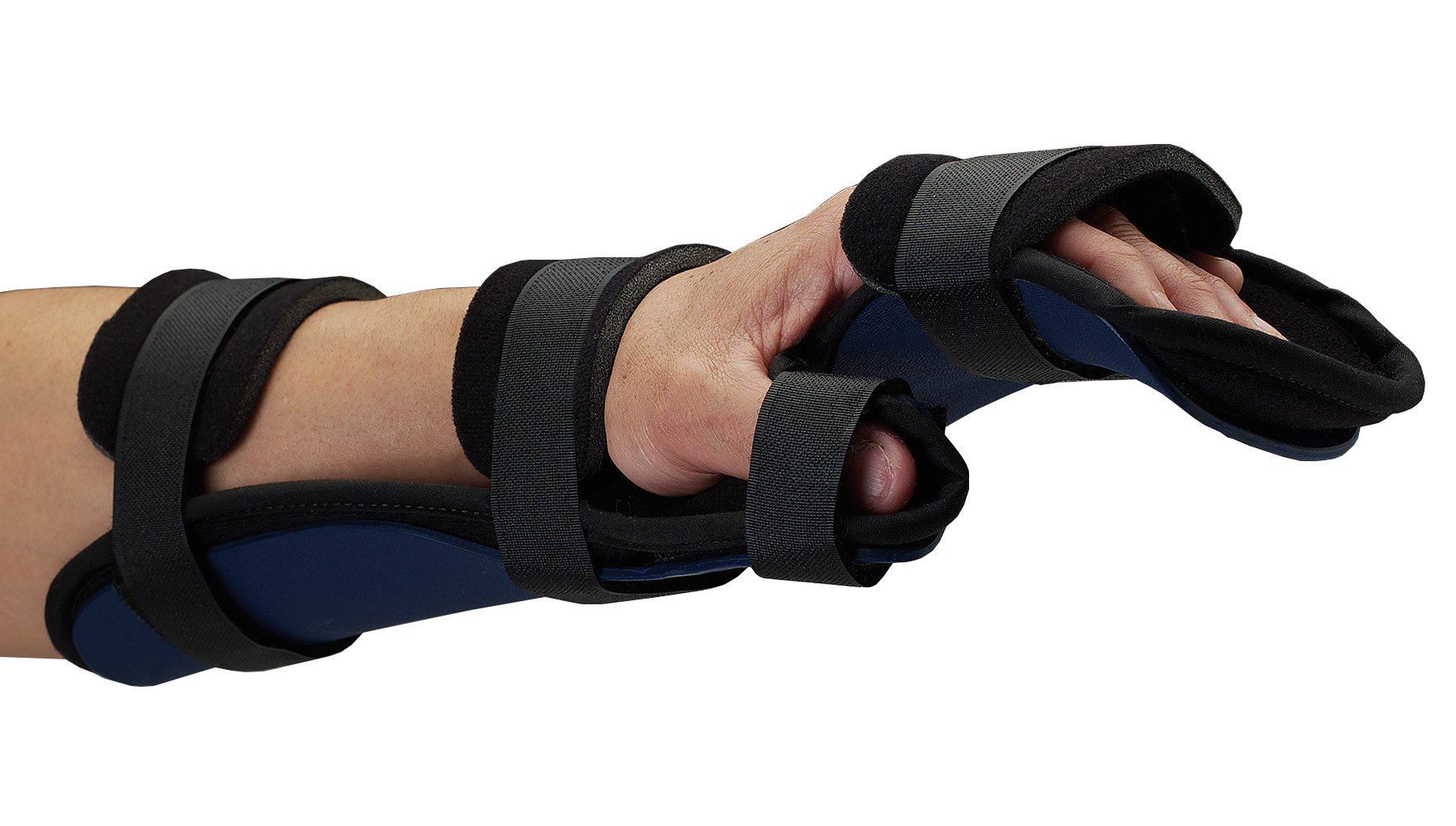 Rolyan Kydex Functional Resting Orthosis for Left Wrist, Wrist Splint for Tendinitis, Inflammation, Carpal Tunnel, Tendonitis, Wrist Splint & Forearm Support & Alignment, Requires Heat Gun, X-Small