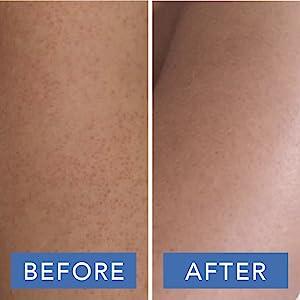 kp body scrub touch shower keratosis pilaris chicken skin