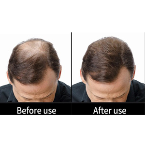 Maxx Hair Fibers effects on this hair