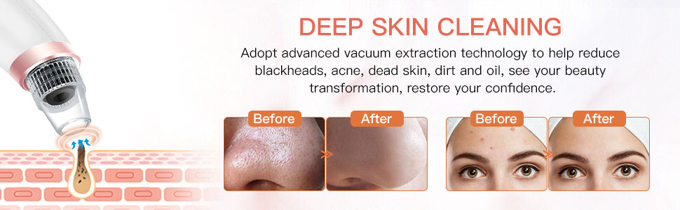 Vacuum Cleaner -Deep Skin Cleaning