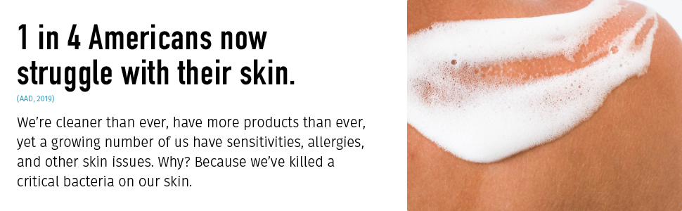 mother dirt skin sensitivities allergies skin issues bacteria