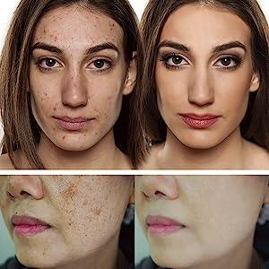 pigmentation, discoloration, dry patches, irritation
