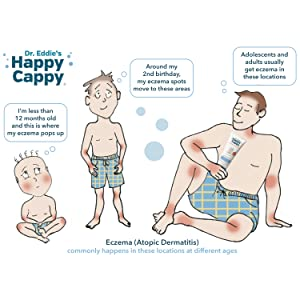 Eczema, infant, child, adolescent, adult, happy cappy, dr. eddie, redness, itchy, atopic dermatitis