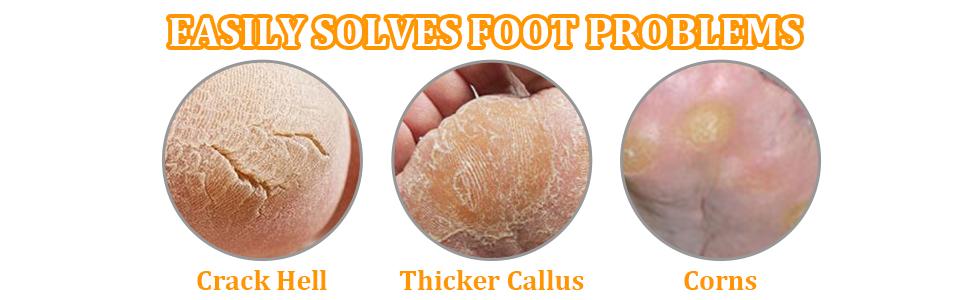 foot file,foot files,callus remover,callous remover,foot scrubber,foot scrub,feet scrubber,foot rasp