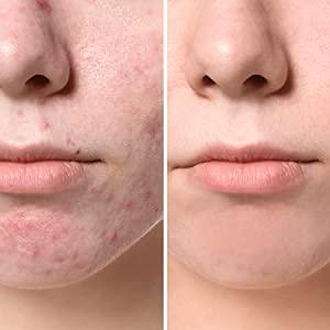 acne, antifungal, antibacterial, pores, pimples