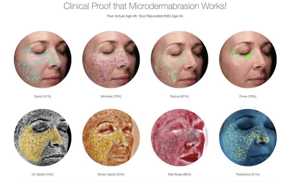 Clinical proof that MiniMD microdermabrasion by trophy skin works