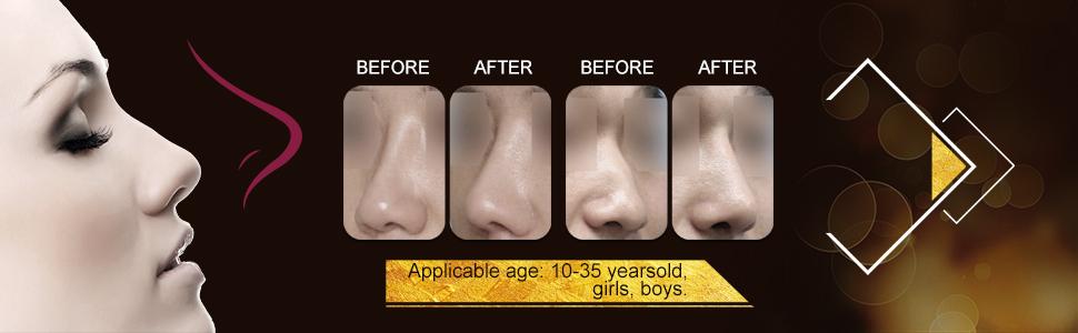 Rulav Nasal Corrector, Nose Straightener, Nose Slimmer, Nose Job Shaper, Nose Shaper for Wide Noses