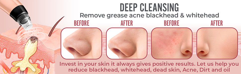 Deep Cleansing - Before - After -