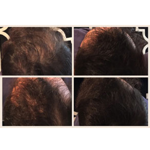 Luxe Professional Hair Fibers