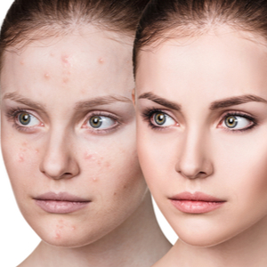 dermaclear acne pads