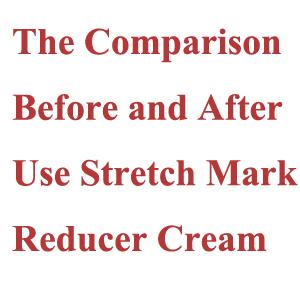Stretch Mark Reducer Cream