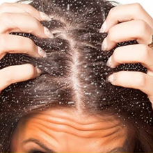 Dandruff shampoo for dry hair shampoo for color treated hair sulfate free paraben free oily hair