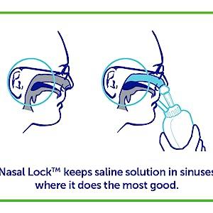 Nasal Lock