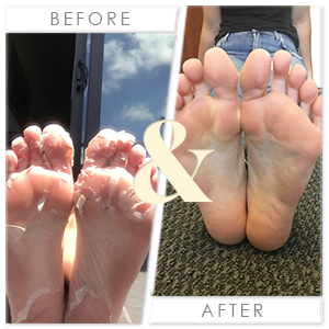 FootGod Foot Peel Before and After