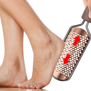 hard skin remover